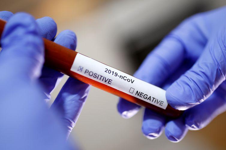 Ceará registra primeira morte pela variante Delta; paciente não tomou vacina contra Covid-19